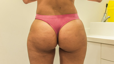 Why Are So Many British Women Getting Butt Jobs?