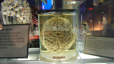 100 Pickled Brains Have 'Gone Missing' from the University of Texas