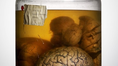 The Malformed, Forgotten Brain Collection of a Former 'Lunatic Asylum'